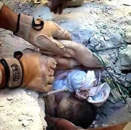 Yemen Genocide